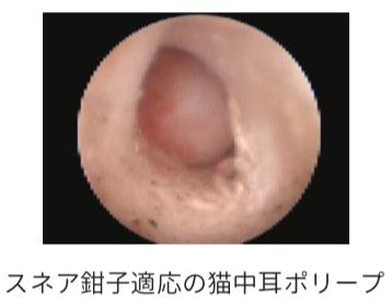 スネア鉗子適応の猫の中耳ポリープの写真